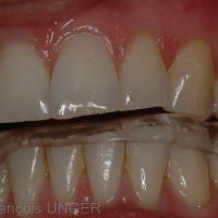 Nouvelle gouttière mandibulaire. Contacts glissants vers la gauche. défaut de contacts.