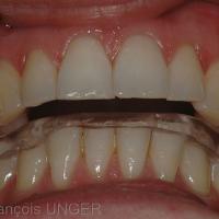 Il existe sur la nouvelle gouttière mandibulaire une possibilité de seconde position mandibulaire. cette gouttière n'a pas été réalisée en OIM, ou n'a pas été équilibrée en OIM par le praticien qui l'a installée.