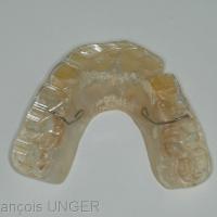Ancienne gouttière maxillaire. On distingue clairement l'ampleur des ususres et le fait qu'elles touchent toutes les surfaces occlusales.