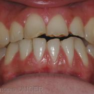 Délabrements des dents antérieures sans cause identifiable
