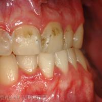 Fig 3 : Position mandibulaire d'onychophagie, ongle coupé
