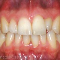 Fig 7 : Position mandibulaire d'OIM. Observer à nouveau une occlusion inversée