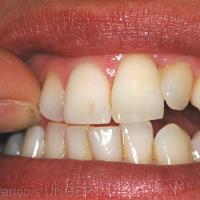 Fig 8 : Position mandibulaire d'onychophagie
