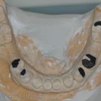 Fig 21 : En fin d'équilibration des moulages les soustractions sont signalées en noir. Elles représentent ce qu'il faudrait enlever aux dents mandibulaires pour obtenir un calage et un centrage mandibulaire, à la DVO existante et en respectant ici le plan d'occlusion maxillaire.