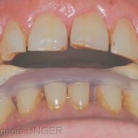 Fig 5: Après équilibration de l'orthèse dans la nouvelle position mandibulaire détendue, on retrouve un calage canin bilatéral simultané