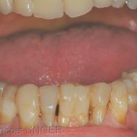 Fig 4: Vue globale des collages de surélévation mandibulaire