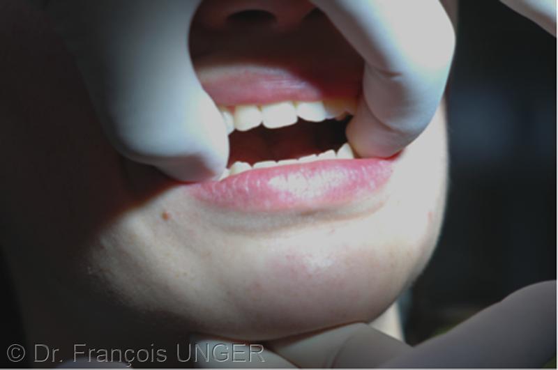 La mandibule est soupesée délicatement par une main qui vérifie sa libre élévation, tandis que deux doigts de la main opposée interdisent que des contacts occlusaux puissent s'établir