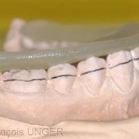 Fig. 12 : La résine modelée étant disposée sur le moulage…