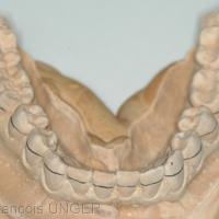 Fig. 2 : Les limites de l'orthèse sont tracées sur le moulage au niveau de la ligne de plus grand contour des dents