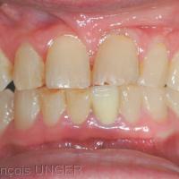 Fig 1 : Position mandibulaire d'OIM donnée spontanément par la patiente quand on lui demande de serrer les dents