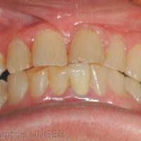 Fig 2 : Position mandibulaire d'OIM obtenue si on demande à la patiente de « mieux placer ses dents »