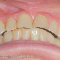 Fig 4 : Encore une autre position donnée par la patiente (aucune manipulation, aucune indication du praticien ou contrôle dans un miroir)