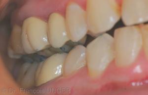 Fig 1 : Situation occlusale droite quand la mandibule est placée en position d'ORC approchée, par manipulation du praticien