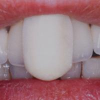 Fig. 1 : Butée antérieure vue vestibulaire (« Occlusion et Fonction » , Marcel Le Gall et Jean François Lauret, CdP edit 2002)