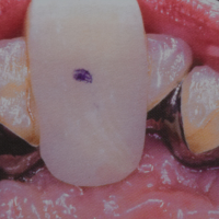 Fig. 2 : Butée antérieure vue palatine. (« Occlusion et Fonction » , Marcel Le Gall et Jean François Lauret, CdP edit 2002)