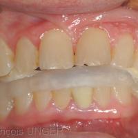 Fig 4 : Position mandibulaire en ORC approchée initiale sur la gouttière