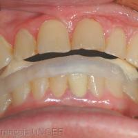 Fig 5 : Position mandibulaire en ORC après réglages successifs (équilibrations) de la gouttière. Observer le recul mandibulaire