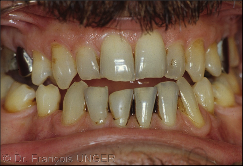 Fig.2 : Patient en ORC