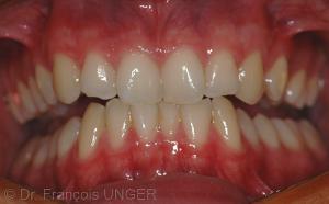 Fig. 1 : OIM spontanée. Position mandibulaire de bout à bout que donne le patient quand on lui demande de serrer les dents.