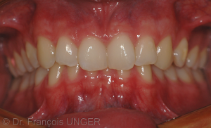 Fig. 2 : OIM réelle obtenue par serrage sur l'ensemble des dents. (vue de face)