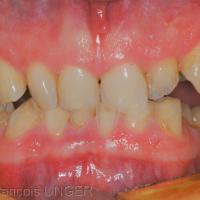 Fig 2 : Contacts antérieurs lors du glissement d'incision