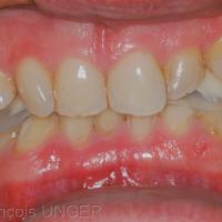 Fig 3 : Orthèse en place