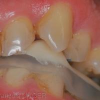 Fig 4 : L'orthèse présente un guidage canin qui évite à toutes les autres dents de prendre en charge les mouvements mandibulaires