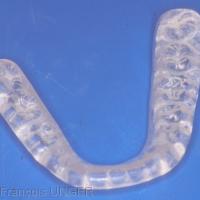 Fig 30 :Elle est ensuite polie (ici gouttière mandibulaire).