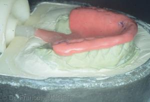 Fig 31 : Si une maquette est réalisée elle peut être mise en moufle pour que la gouttière soit réalisée en résine injectable.