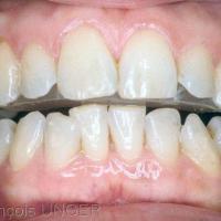 Fig 10 : Avant de rectifier des bords libres incisivo-canins mandibulaires pour qu'ils établissent des contacts avec le plan rétro-incisifs…