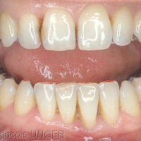 Fig 6 : Un papier encré met en évidence les points de contacts entre les dents antérieures…