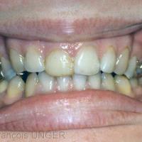 Fig 11 : Plan de morsure en bouche après quelques années de port. La patiente, étudiante dans une autre ville avait demandé à un praticien de faire un collage vestibulaire sur sa 11 pour l'aligner avec la 21.