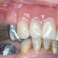 Fig. 12 : Dispositif en bouche