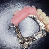Fig. 2 : En cas d'urgence il est possible de modifier transitoirement une prothèse amovible partielle en lui adjoignant un trottoir rétro-incisif qu'on règlera selon les critères habituels.