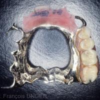 Fig. 3 : Après polymérisation de la résine celle ci est réglée pour obtenir la décontraction des muscles masticateurs. (vue de l'extrados)