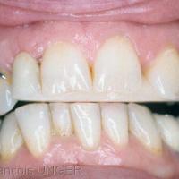 Fig. 7 : Vue en bouche, prothèse en place.