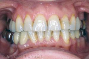 Fig 3 : Situation orale après équilibration et prothèse