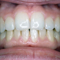 Fig 1 : Situation initiale d'OIM d'une jeune patiente après traitement ODF. Vue frontale.