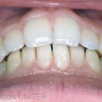 Fig 2 : Recouvrement antérieur avec contacts entre toutes les dents lors de l'OIM.