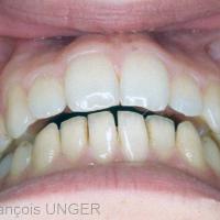 Fig 6 : Situation donné par la patiente en fermeture spontanée (non manipulée) après quelques jours. Apparition d'un surplomb antérieur.