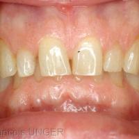Fig 1 : Situation clinique initiale. Réalisation et réglage en bouche d'une gouttière maxillaire en ORC approchée sur articulateur.