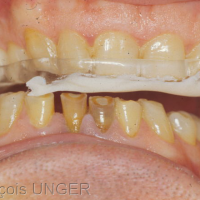 Fig 13 : …puis le patient est invité à guider sa mandibule sur la droite en gardant un appui sur la gouttière…