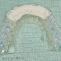 Fig 16 : Après polymérisation de la résine la gouttière est retirée de la bouche…
