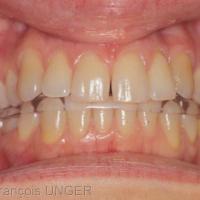 Fig 30 : C'est le contrôle final en bouche qui valide la parfaite équilibration des appuis sur la gouttière et la planéité de sa surface.
