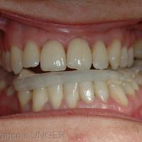 Fig 14 : Gouttière mandibulaire réglée
