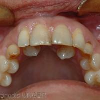 Fig 17 : Les canines en position palatine compliquent la réalisation et le réglage d'une gouttière mandibulaire.