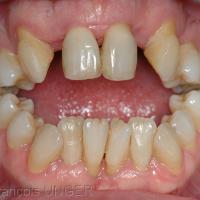 Fig 25 : Autre situation de béance, avec ouverture de l'angle mandibulaire qui empêche toute réalisation correcte de gouttière
