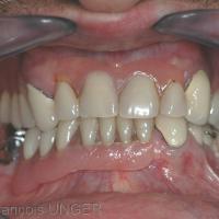 Fig 26 : Situation d'un patient porteur de deux prothèses amovibles