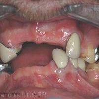 Fig 28 : Situation à gauche, prothèses enlevées. La réalisation d'une gouttière mandibulaire ou maxillaire s'avèrerait difficile.
