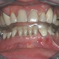 Fig 29 : La gouttière a été réalisée à la mandibule, sur la prothèse amovible